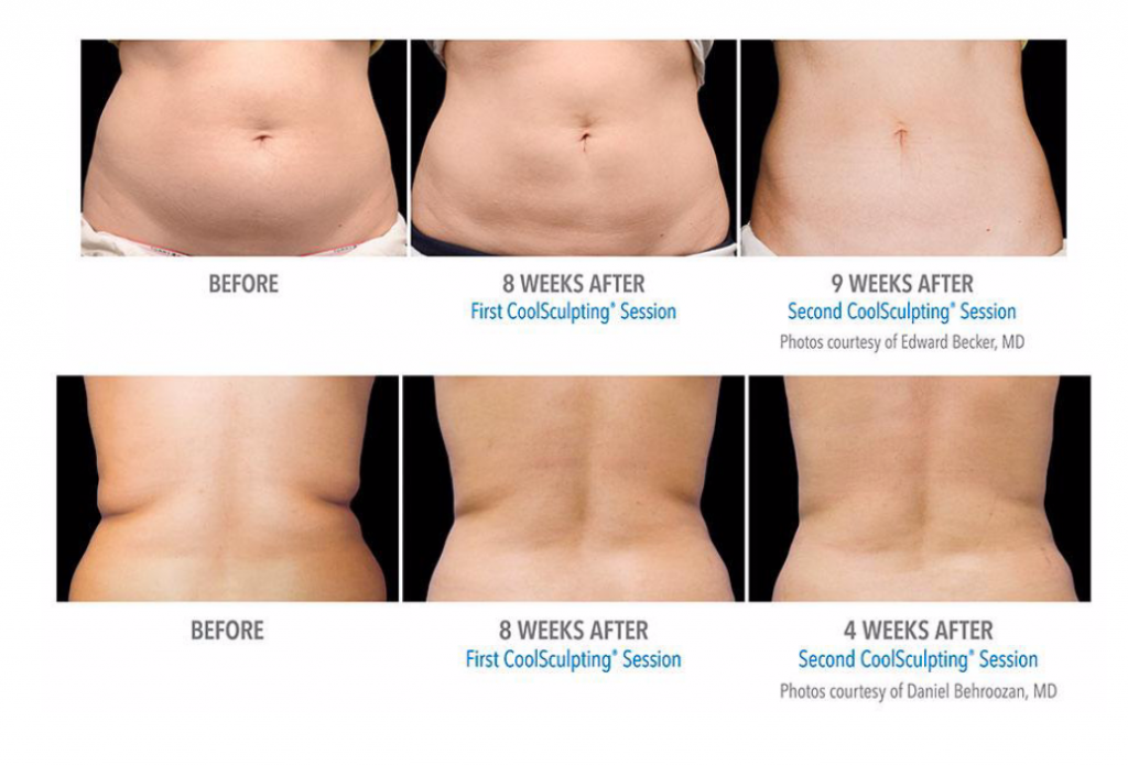 CoolSculpting in Vancouver