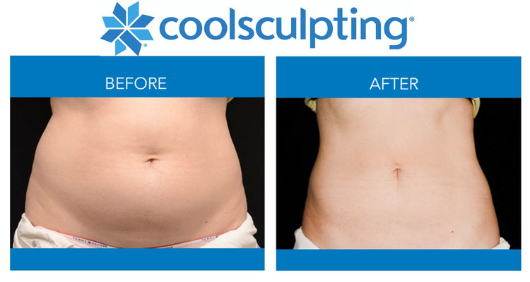 Vancouver CoolSculpting FAQs: Slim and Contour Your Body Without Surgery