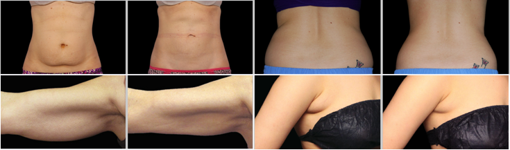 Vancouver Coolsculpting Clinic B and A