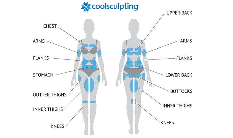 Vancouver Coolsculpting Clinic