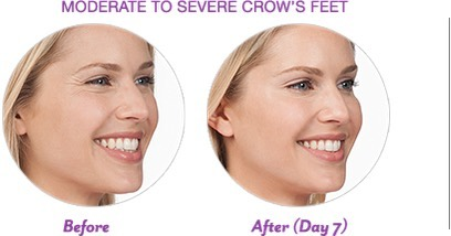 Is It Time to Consider Botox?