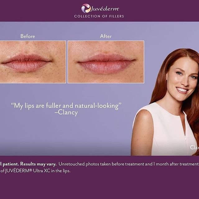 Pout Perfect: Using Dermal Fillers to Achieve Beautiful Lips